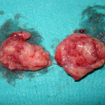 800px-Tonsillectomy_tonsils